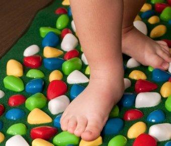 c377faa1c5cd0a Лікування плоскостопості 3 ступеня у дорослих і дітей