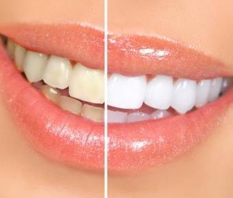 Методи відбілювання зубів 62f1d0049bfa5