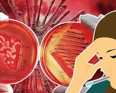 5 головних правил, яких слід дотримуватися, щоб швидко вилікуватися від коронавируса