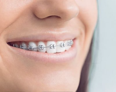 Як довго потрібно носити брекети на зубах?