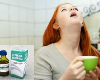 Чим полоскати горло при ангіні дорослому і дитині: 9 рецептів, які точно працюють
