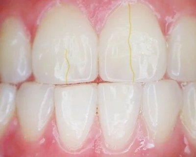 Трещины на эмали зубов: причины возникновения и лечение