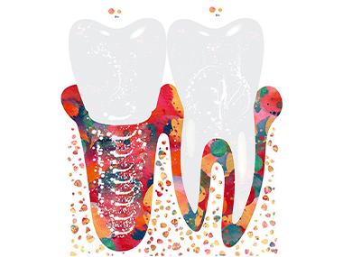 Какие зубные импланты лучше?