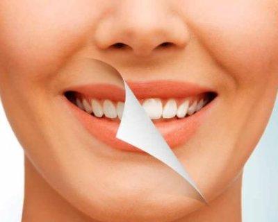Кому не можна вибілювати зуби: 6 головних показників