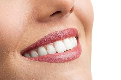 Чи варто ставити вініри на здорові зуби