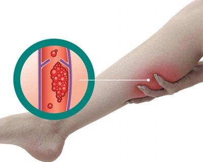 Все про тромбоз вен ніг і тромбоемболії легеневої артерії: чому з'являється і як коронавірус впливає на її розвиток