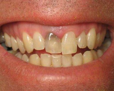 Що робити, якщо один зуб темніше інших (4 способи вирішити проблему)