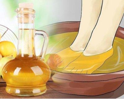Ванночки для ніг з яблучним оцтом: рецепти від тяжкості, запахів, мозолів і не тільки